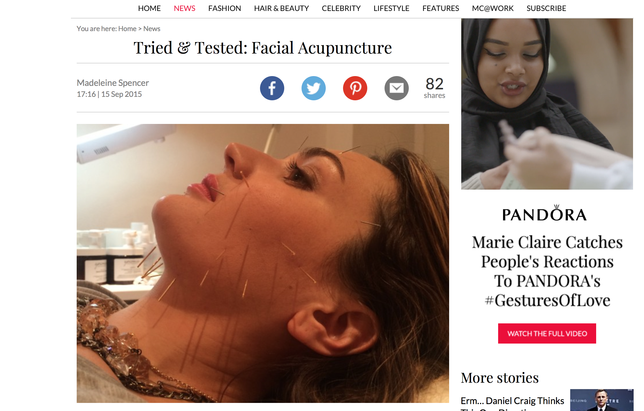 Watch Tried Tested: Facial Acupuncture video